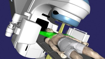 Ejemplo de radioterapia guiada por imagen / Varian Medical Systems, Inc.