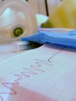 Los nuevos datos ayudarán a los médicos a tratar con mayor precisión disfunciones cardíacas / Kalshassan.