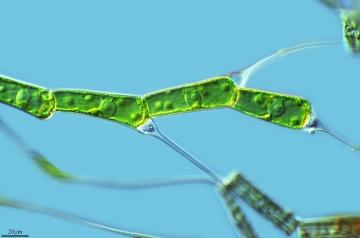 cianobacterias