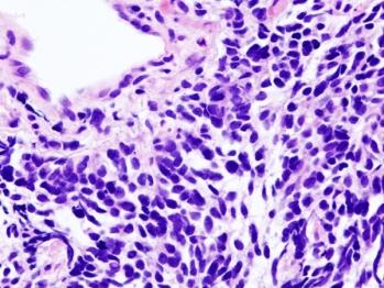 Vista microscópica de una biopsia de carcinoma de pulmón de células pequeñas / H & E stain CC BY-SA 3.0.