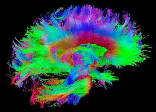GPS-cerebro-1